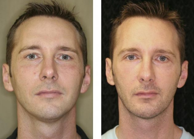 Blepharoplasty Fort Lauderdale Before And After Miami