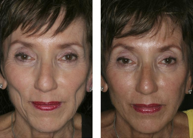 Cheek Enhancement Fort Lauderdale Before And After