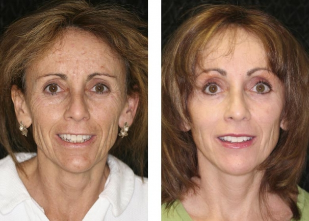 Chin Enhancement Fort Lauderdale Chin Augmentation Fort