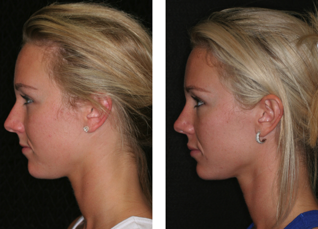 Lip Enhancement Fort Lauderdale Before And After Miami