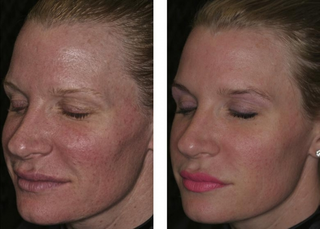 Anti Aging Facial Rejuvenation Before And After Fort