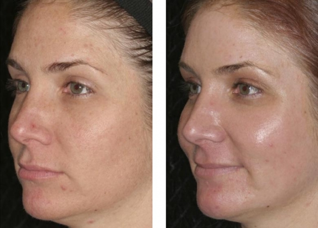 Anti Aging Amp Facial Rejuvenation Before And After Fort