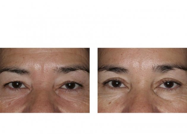 Endoscopic Brow Lift Fort Lauderdale Before And After