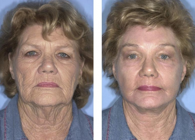 Facelift Fort Lauderdale Neck Lift Fort Lauderdale