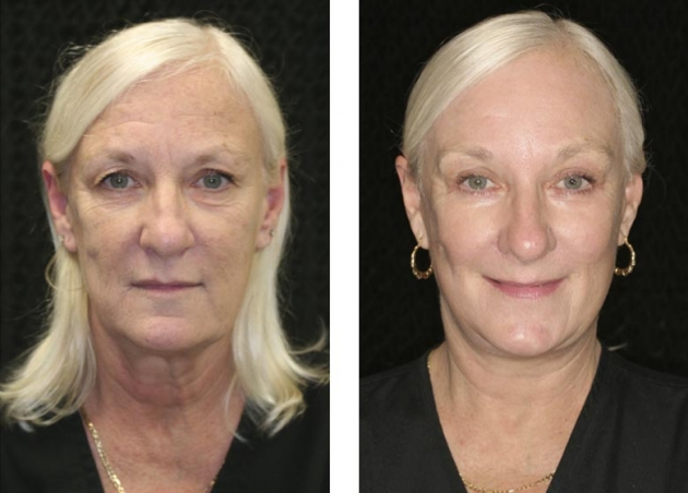 Four Dimensional Facelift Fort Lauderdale Before And