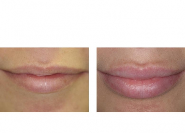 Injectable Fillers Fort Lauderdale Before And After