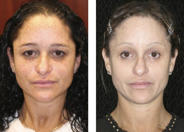 Laser Skin Resurfacing Fort Lauderdale Before And After